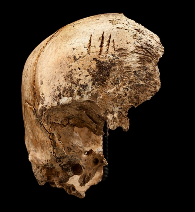 This August 2012 photo shows four shallow chops to an incomplete skull excavated in James Fort, Jamestown, Va. (Photo by Don Hurlbert)