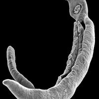 schistosome parasite