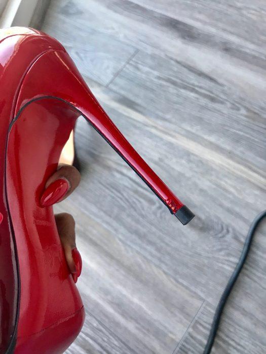 heel damage