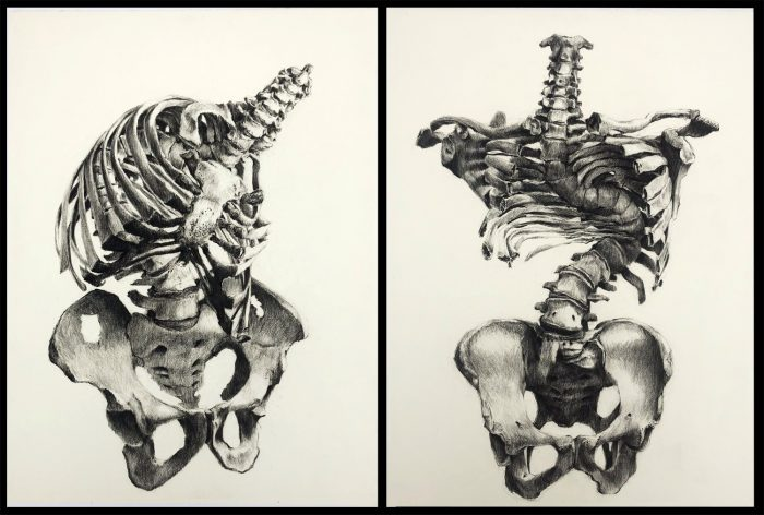 drawing of distorted spine